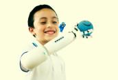 Lego дарит не только счастье, но и футуристические протезы
